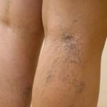 фото: Лечение варикоза в домашних условиях