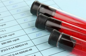 Анализ крови на повышенное СОЭ. Норма СОЭ у ребенка
