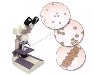Бактерии в моче у ребенка: причины и лечение