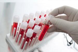Билирубин в крови