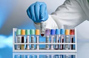 Биохимия АСТ крови. Анализ, нормы, причины повышения.