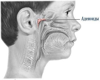 Лечение аденоидов 2 степени народными средствами.