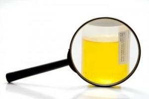 Повышенное содержание аскорбиновой кислоты в моче: причины, лечение