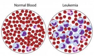 Причины увеличения бластов в крови: анализ на бласты, норма количества
