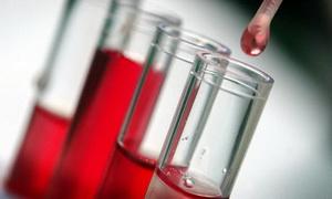 В крови антитела - что это значит. Анализ крови на антитела при беременности - нормы, симптомы
