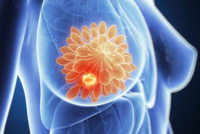 Фиброзная кистозная мастопатия молочных желез