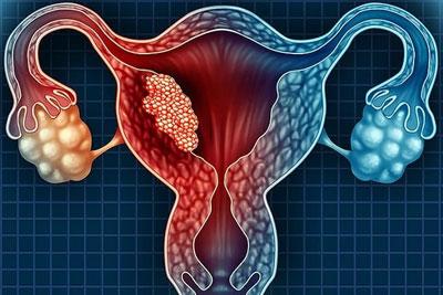 Миома матки на фоне внутреннего эндометриоза
