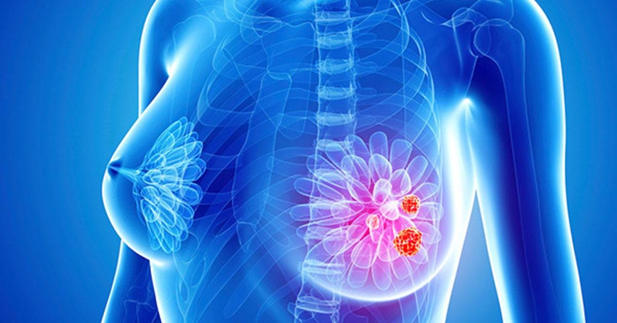 Как выглядит рак груди