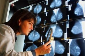 Рак груди стадии