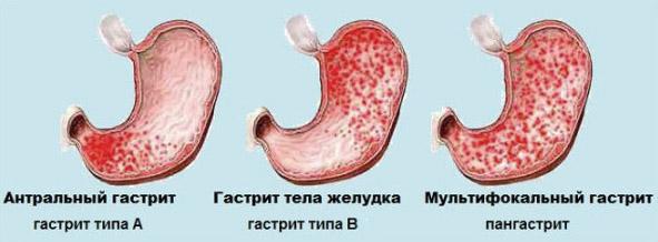 Локализация воспаления желудка
