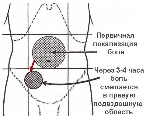локализация аппендицита