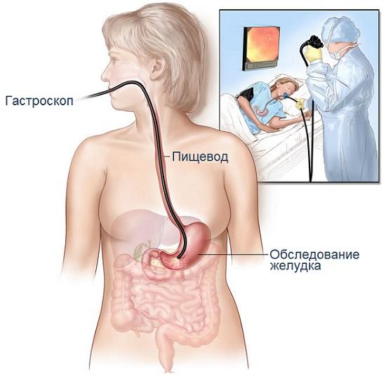 ЭФГДС желудка