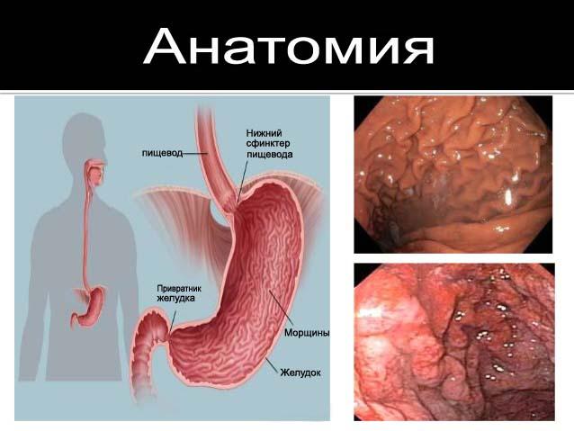 болезнь желудка Менетрие