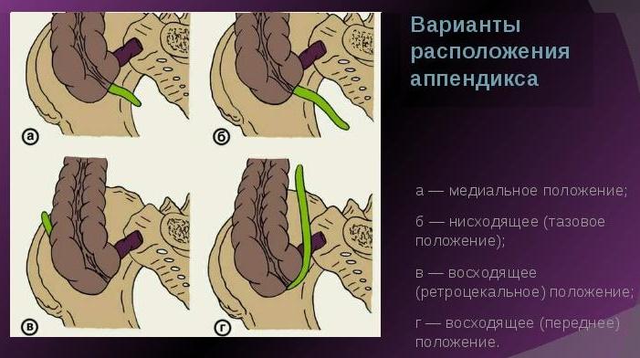 варианты расположения аппендицита