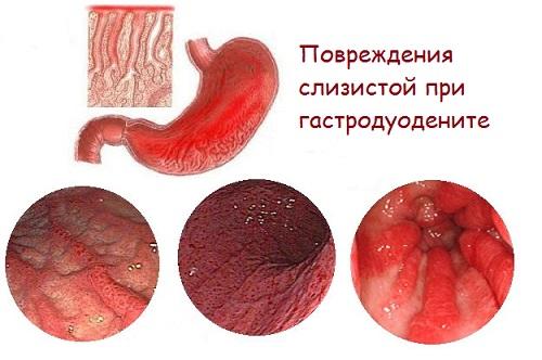 виды повреждений желудка