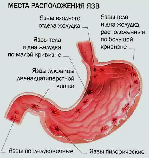 виды язв в желудке
