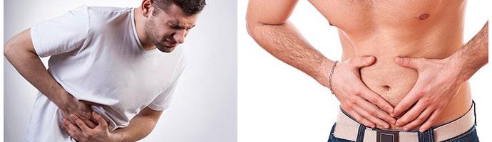 воспаление аппендикса у мужчин