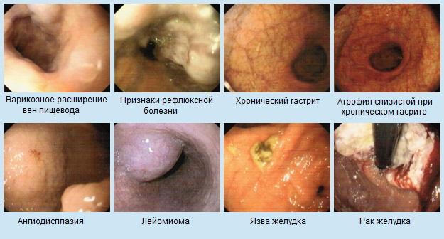 заболевания, обнаруженные при гастроскопии