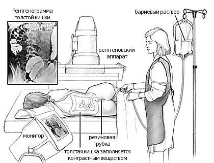 закачивание контраста в кишечник