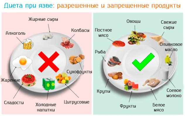 запрещенные и разрешенные продукты при язве