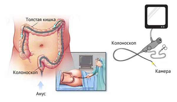 исследование кишечника колоноскопом