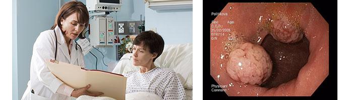 как выглядит рак желудка на 4 стадии