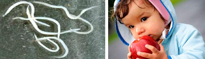 как узнать, заразился ли ребенок острицами