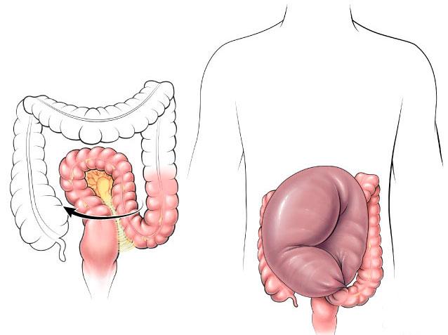 кишечник при долихосигме