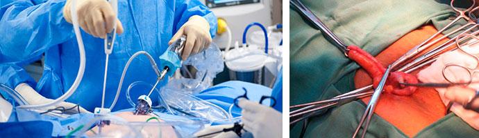 лапароскопия и обычная операция