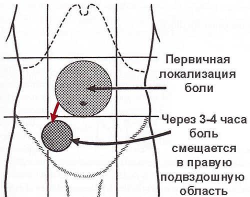 локализация боли при аппендиците