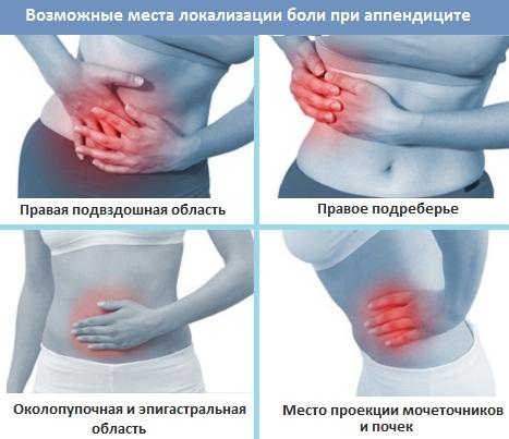 места боли при аппендиците