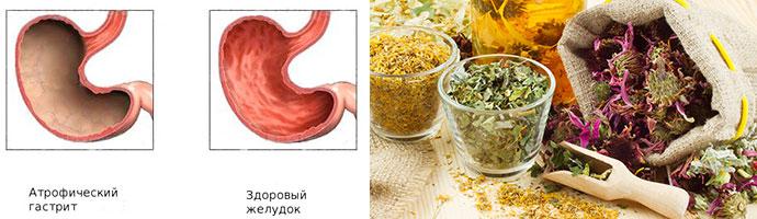 народная медицина поможет в лечении гастрита