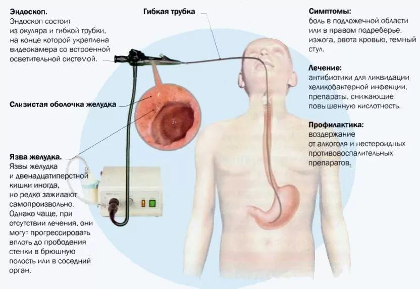 обнаружение язвы при гастроскопии