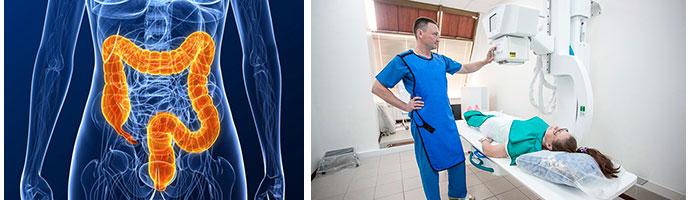 обследование кишечника с помощью ирригоскопии