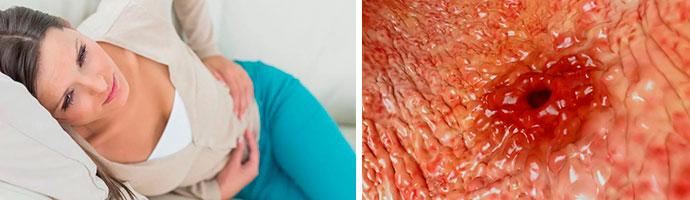 острая желудочная язва