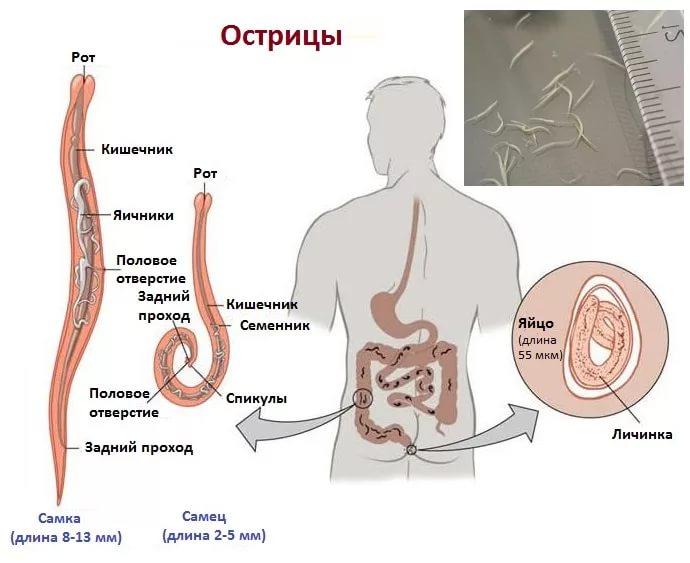 паразиты острицы