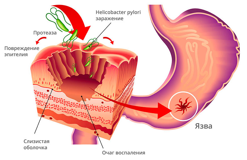 повреждение стенок желудка Хеликобактер Пилори