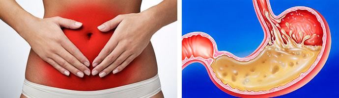 повышение кислотности в желудке