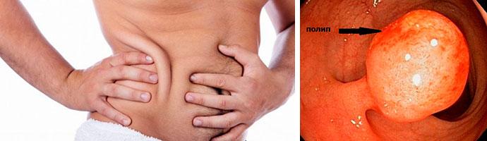 полипоз кишечника