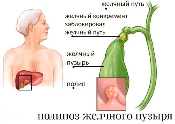 что такое полипоз