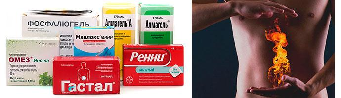 препараты от изжоги при гастрите