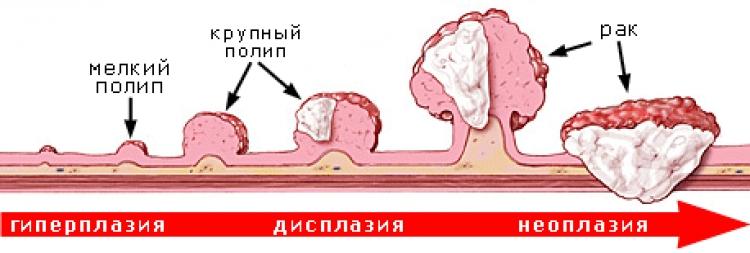прогрессирование полипоза