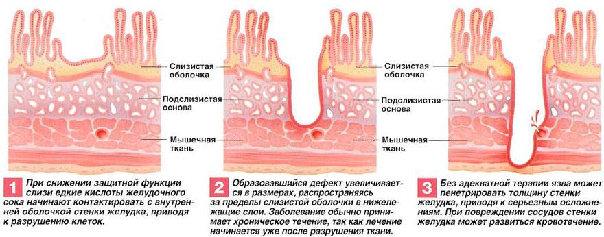 процесс формирования язвы