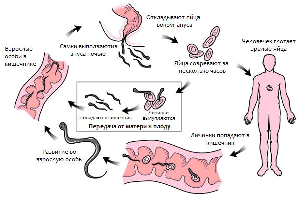 пути передачи энтеробиоза