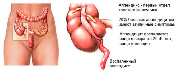 воспаленный аппендикс в организме