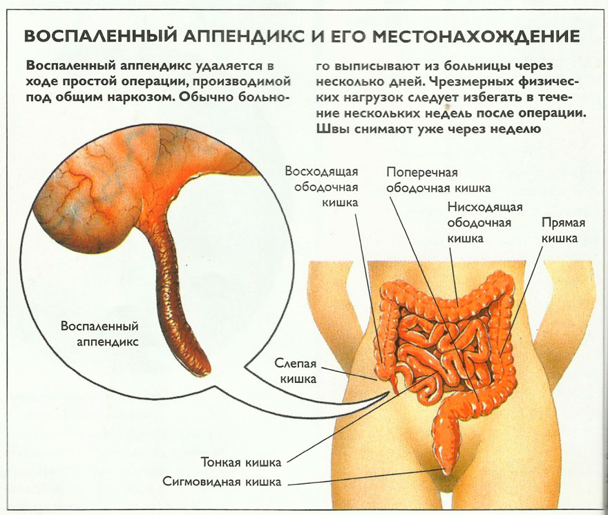 расположение аппендицита
