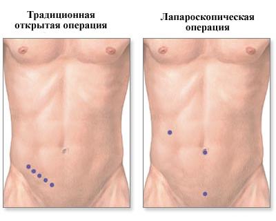 расположение швов после удаления аппендикса