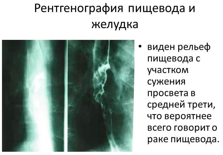рентген пищевода и желудка