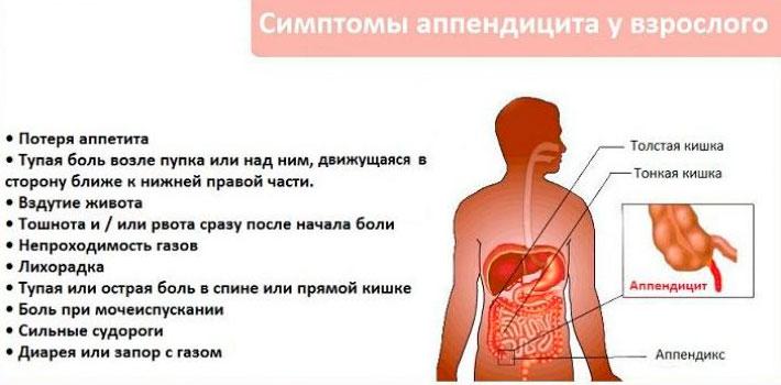 воспаление аппендикса у взрослых