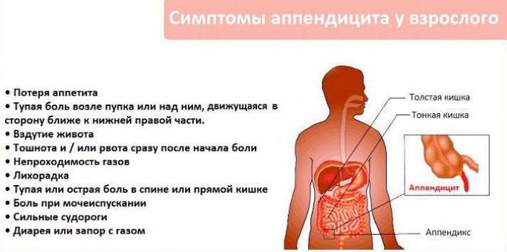 симптомы аппендицита